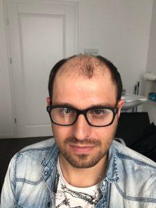 Sposób Na łysienie Typu Męskiego System Włosów Hair