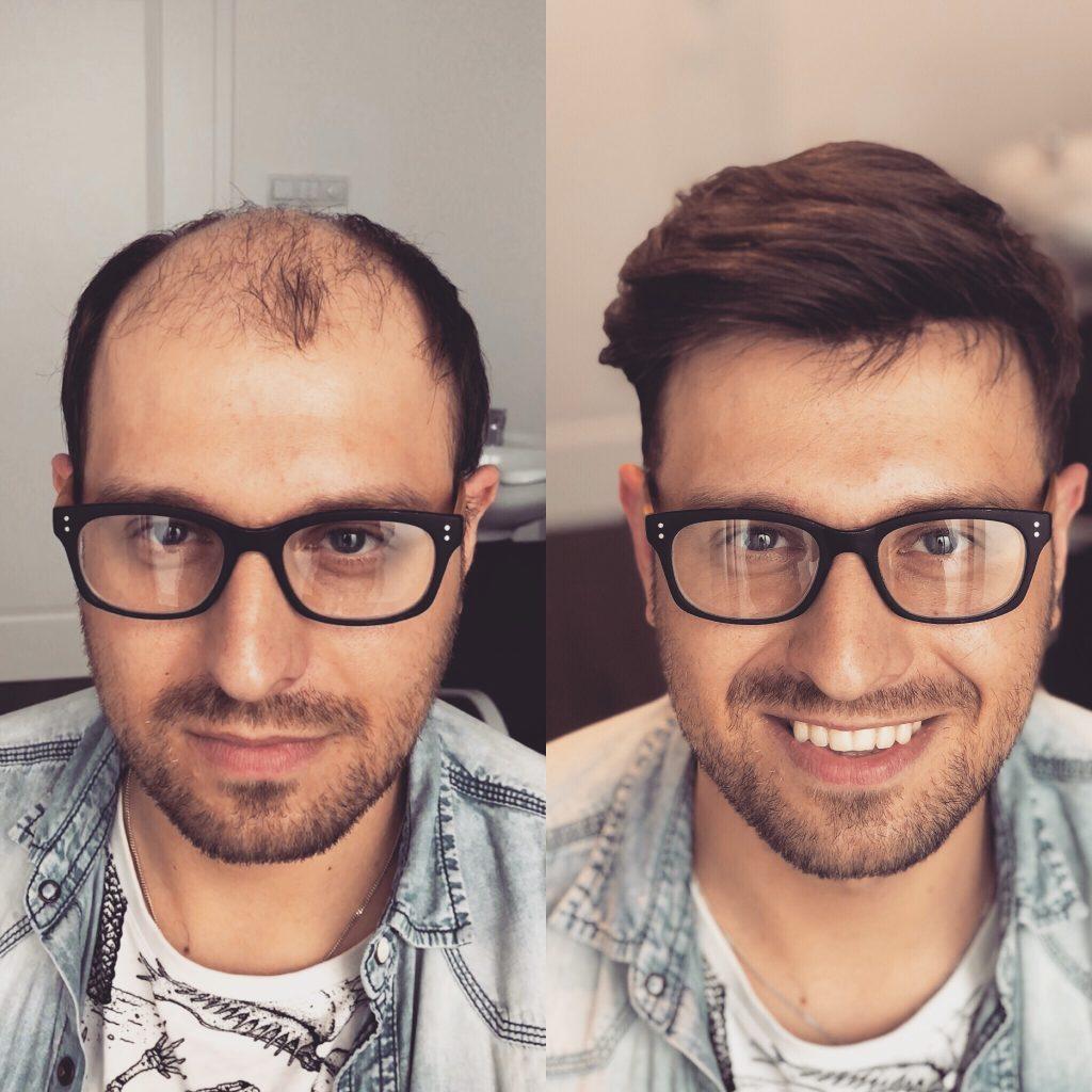 Hair Majesty Studio Wypadanie Włosów łysienie Peruki