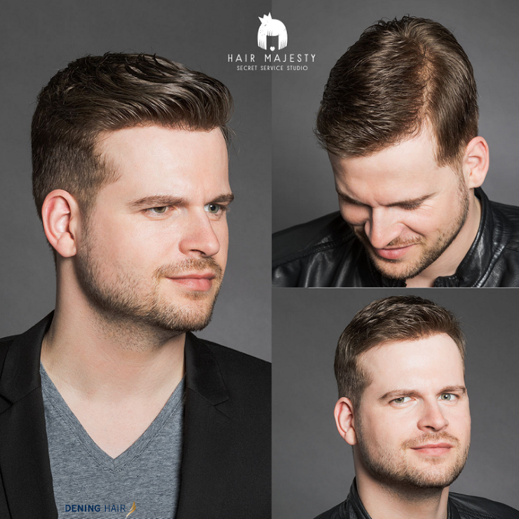 Niechirurgiczne uzupełnianie włosów dla mężczyzn